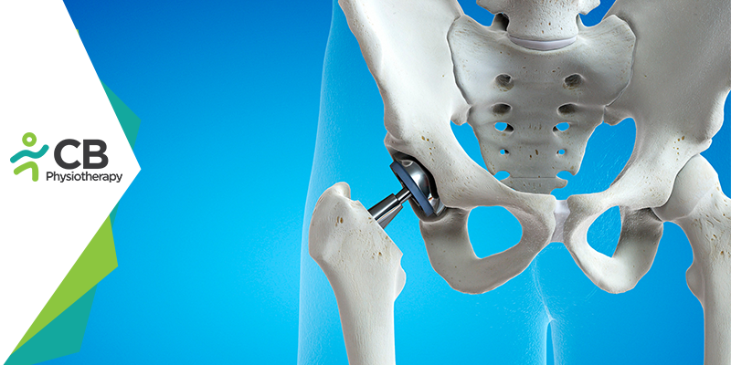 What NOT to do after Hip Replacement Surgery?