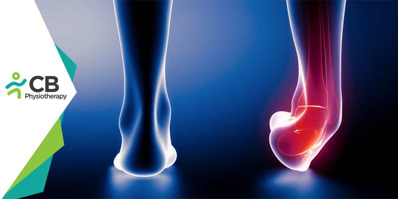 Ankle Sprain | Physiotherapy Management and Prevention.