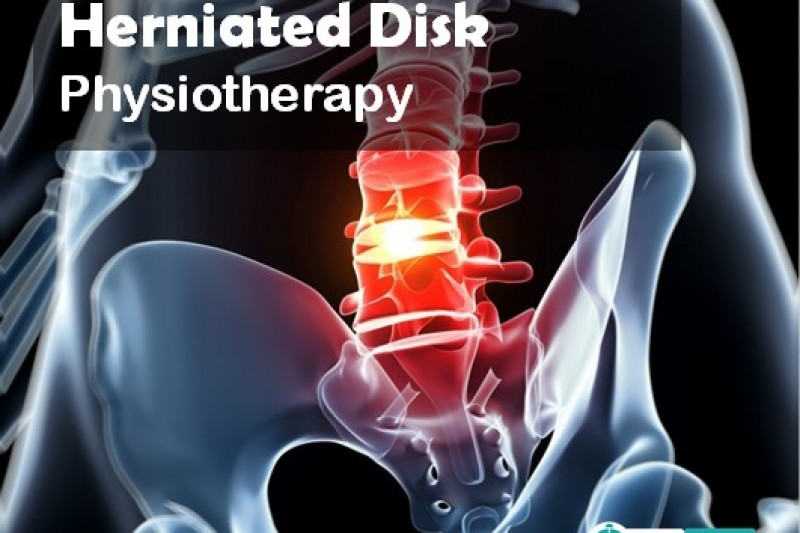 physiotherapy herniated disk