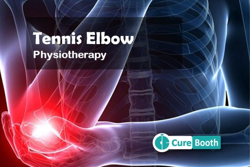 What is Tennis Elbow & How Physiotherapy Can Help?