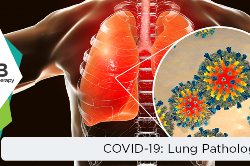 COVID-19 and related Lung Pathology