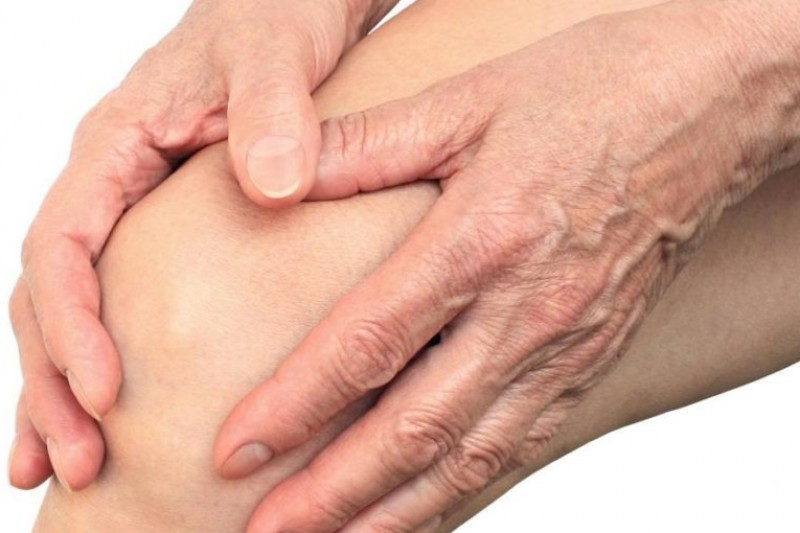 What is Arthritis & How Physiotherapy Can Help