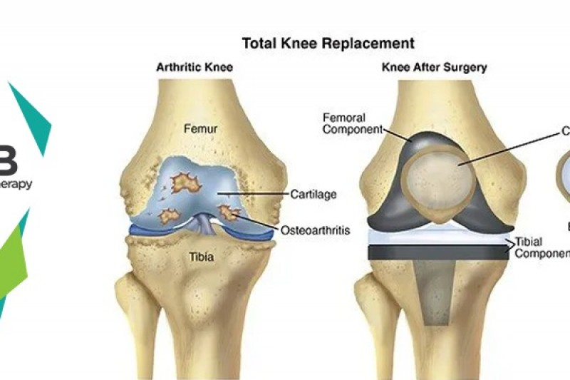 12 Best Postoperative Exercises For Knee Replacement