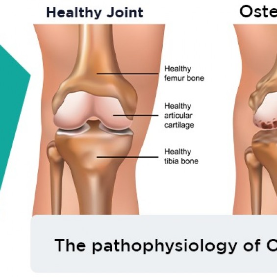 How Osteoarthritis affects Our body? Its Pathophysiology