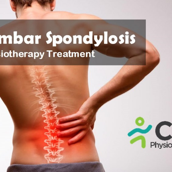 What is Lumbar Spondylosys & How Physiotherapy Can Help?