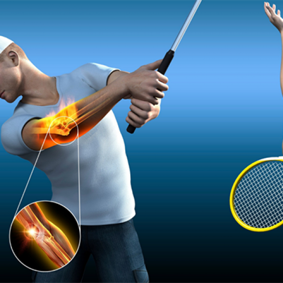 Common Sports Injuries in Tennis and their prevention