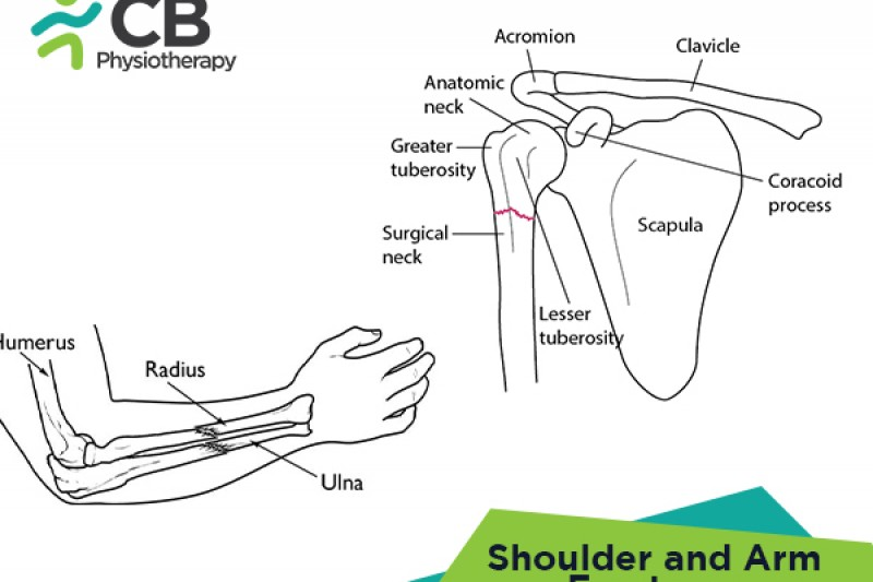 Shoulder and Arm Fractures